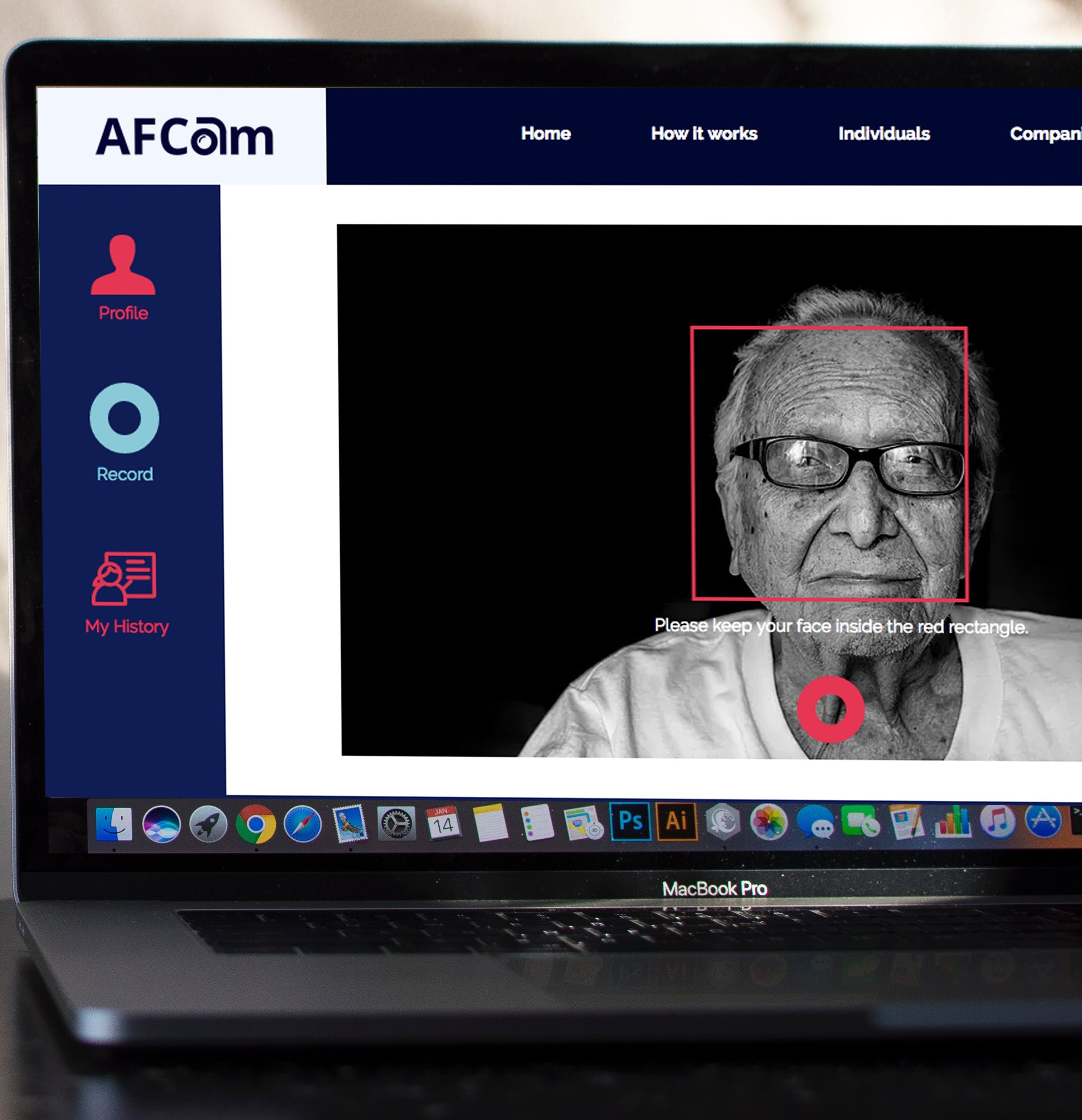 AFCam: A Contactless System for the Detection of Atrial Fibrillation using Camera Recordings